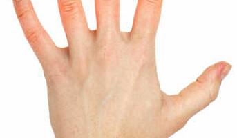 Er hudsykdom et problem for norske arbeidstakere?