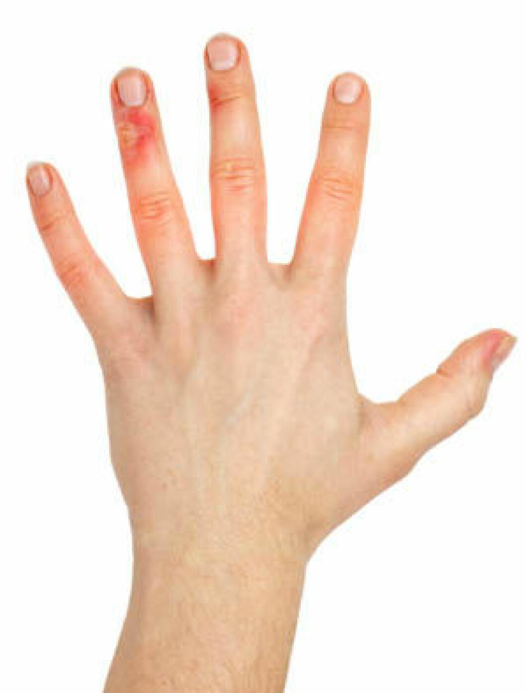 Hånd skade eksem utslett hud