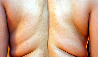 Syke og overvektige søkere diskrimineres